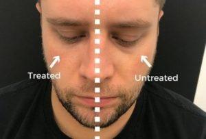 Tear Trough (under eye bags)